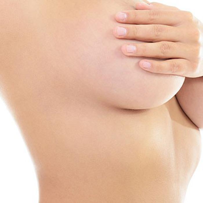 mamoplastia-jpg