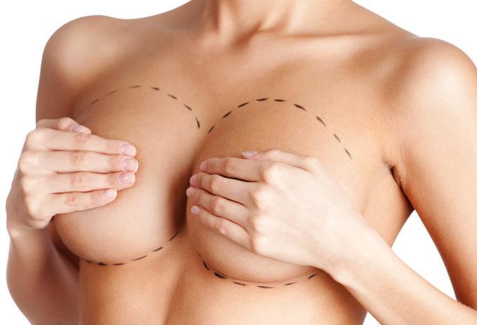 Abdominoplastia - Dr. Roger Vieira